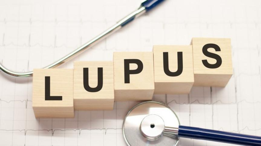 Lúpus é uma doença crônica inflamatória de origem autoimune.